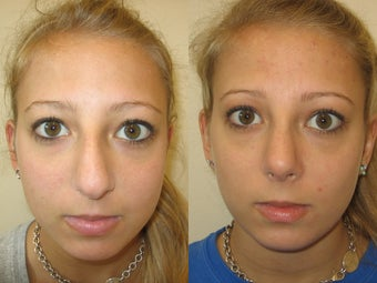 Rhinoplasty after 223020