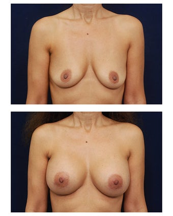 Breast Augmentation before 385517