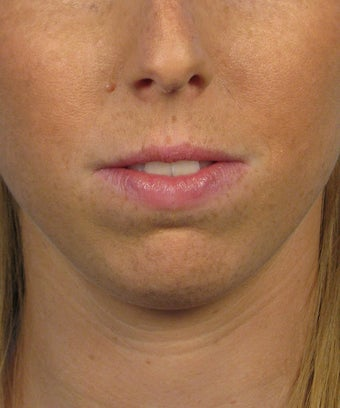 Chin Implant before 414153