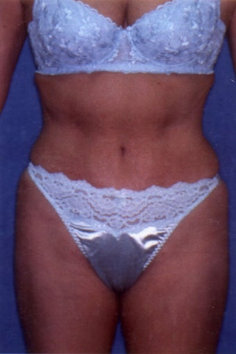 Tummy Tuck with Liposuction after 411589