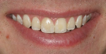 Single tooth veneer after trauma after 112480