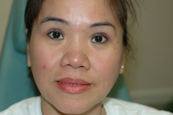 Asian eyelid surgery --  Double lid crease procedure after 341490