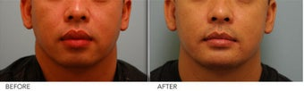 Lip Reduction for Correction of Silicone after 361407