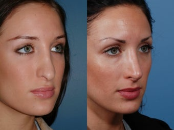 Revision rhinoplasty 435947