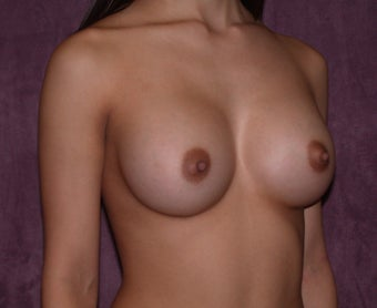 breast augmentation 472141