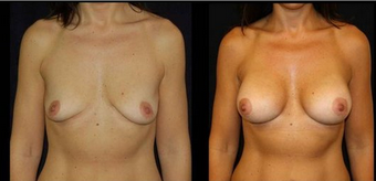 Breast Implants before 150831