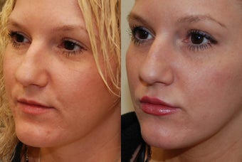 Lip Augmentation with Silikon-1000. 2 treatments. before 487941