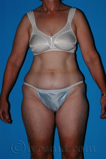 Lower Body Lift with Tumescent Liposuction