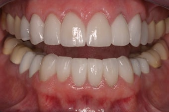 replacement of old restorations and new smile design after 330060