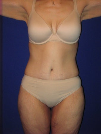 Tummy Tuck (Abdominoplasty) after 194871