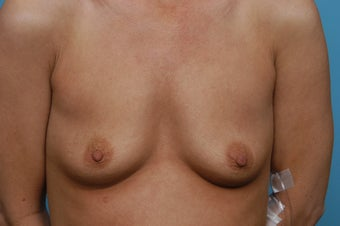 Breast Augmentation before 547809