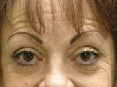 Brow Lift before 541478