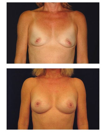 Breast Augmentation before 149510
