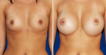 Breast Implants before 494485