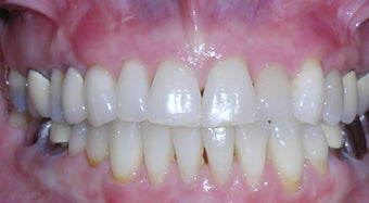 Invisalign correction of crowding after 273977