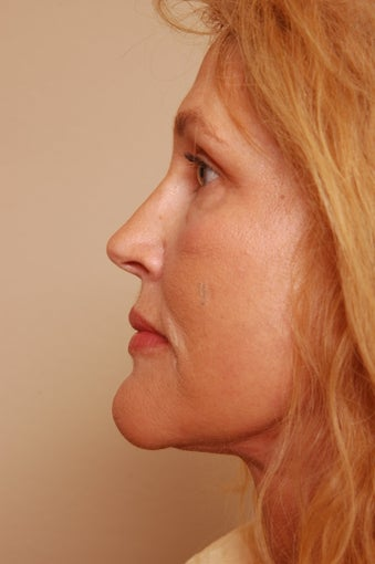Refresher Facelift w/Neck Pliction, Browlift, TCA Peel Lower Lids, Fat Injections to Cheeks & Lips after 252878