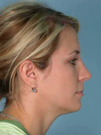 Rhinoplasty after 185996