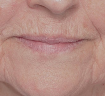 Laser Resurfacing before 588404
