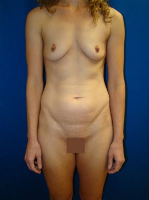 Mommy makeover - Tummy tuck and breast augmentation before 162001