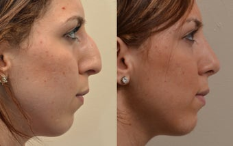 Rhinoplasty before 466639