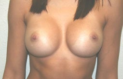 Breast Augmentation after 233360