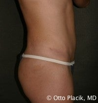 Abdominoplasty 565832