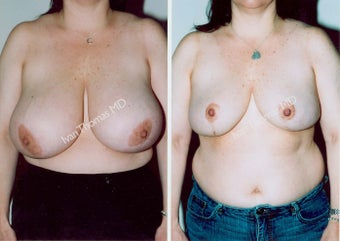 Breast Reduction before 243744