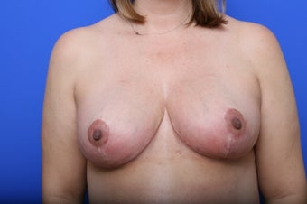 Breast Reduction after 621923