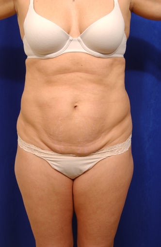 Abdominoplasty before 279347