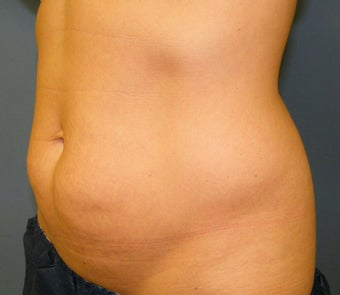 CoolSculpting 621991
