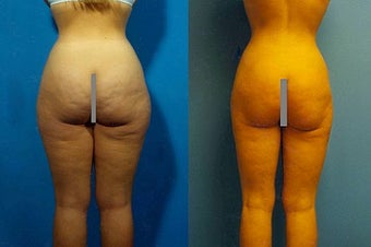 Liposuction before 636250