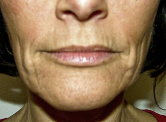 Sculptra, Radiesse, Restylane, and Botox Injection, and Obagi Nu Derm before 257711