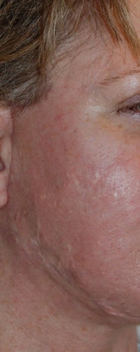 Before and After Multiple Excisions, Fat Grafting and Co2 Laser Active Fx Resurfacing Acne Scar Treatment before 562087