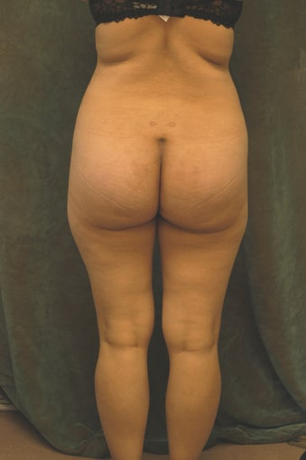 Women's Buttocks Augmentation  518156