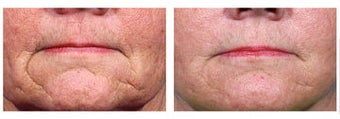 Restylane to wrinkles around mouth before 6269