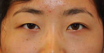 Unilateral (one-sided) Double Eyelid Surgery