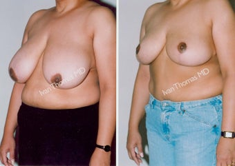 Breast Reduction before 243741