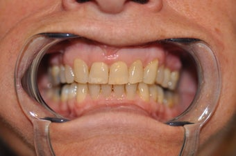 Invisalign to replace a HIDEOUS crown/tooth after 368173