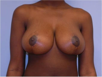 Breast Reduction after 258246