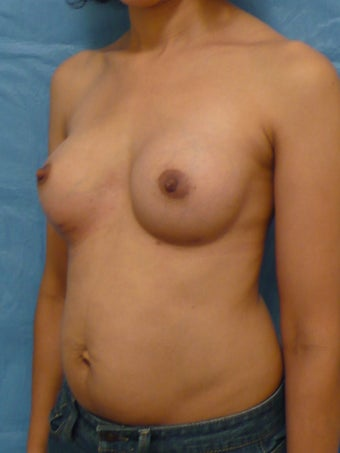 Breast Augmentation after 139715