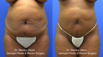 Mini Tummy Tuck before 568396