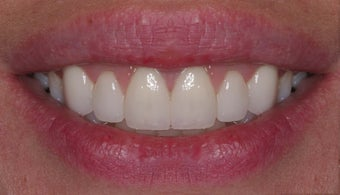 Veneer therapy after 105672