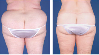 Central body lift with liposuction age 53 after 6817