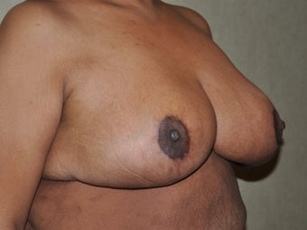 Breast Reduction 530711