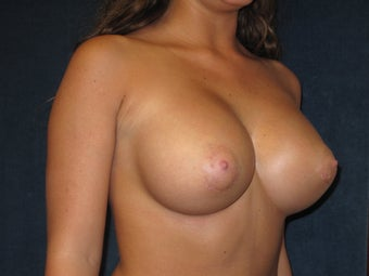 Breast Augmentation  574774
