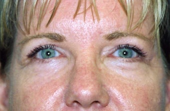 Blepharoplasty after 480514