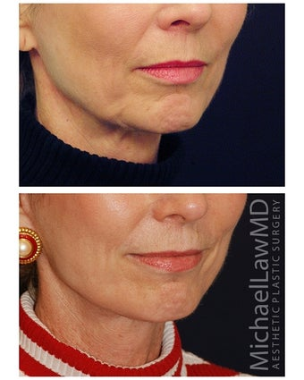 Lower Face and Neck Lift after 355640