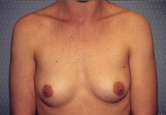 Breast Augmentation before 266792