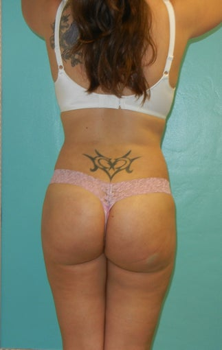 Buttocks Augmentation- Brazilan Butt Lift after 360026