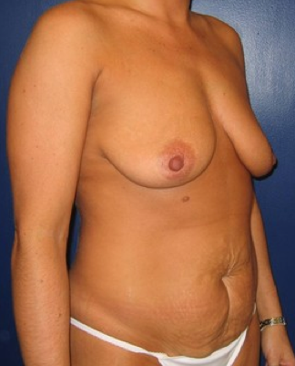 Tummy tuck before 306337